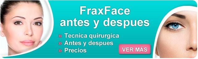 fraxface resultados, fraxface radiofrecuencia fraccionada, fraxface ecleris, como eliminar arrugas en la cara, como combatir las arrugas dela cara, mascarillas para arrugas en la cara,